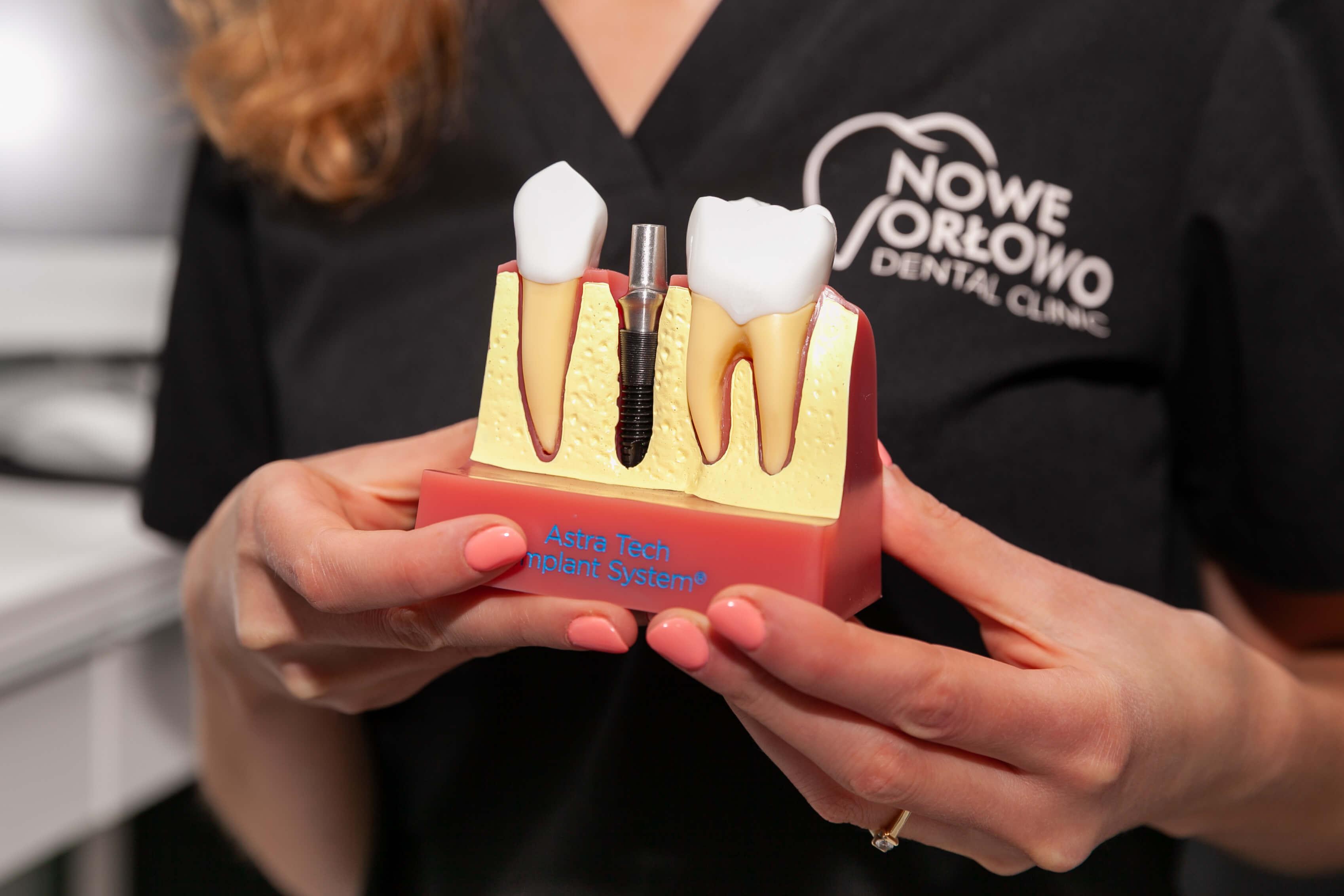 Nowe Orłowo Dental clinic 5 1 - Nowe Orłowo Dental Clinic - a clinic you can trust